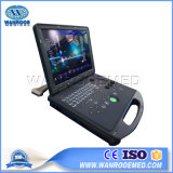 Оск60 портативный цветной доплеровский ультразвуковой системы цен/4D ультразвукового аппарата портативный