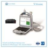 Medizinisches automatisches Ultraschall-Knochen-Densitometer im niedrigen Preis
