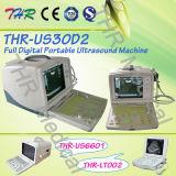 Varredor cheio portátil do ultra-som de Digitas (THR-US30D2)