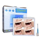 Equipo dental intraoral Cámara endoscopio +175.0 pulgadas de pantalla de LED