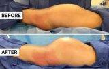 휴대용 18W 1064nm ND YAG Lipolysis 지방 흡입 수술 흡인기 체중 감소 아름다움 기계