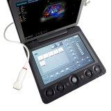 가득 차있는 디지털 휴대용 초음파 4D 색깔 도풀러 Sonoscape S9