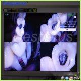 Appareil-photo intraoral intraoral de l'appareil-photo USB d'appareil-photo oral de pépin de matériel dentaire avec le moniteur