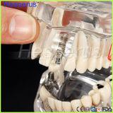 Modèle de enseignement de dents de la maladie amovible d'implant dentaire