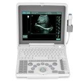 Macchina portatile di ultrasuono di Doppler delle attrezzature mediche