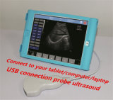 Full Digital Pad Ultrasound with USB Transducer