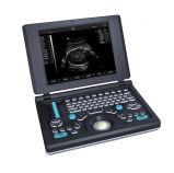 Smartbook Ultrasound Scanner para Medical Use (TY-6868A-1)