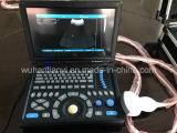 Smartbook Ultrasound Scanner für Medical Use (TY-6868A-1)