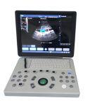 ほとんどの普及したEchographカラードップラーラップトップのEchography機械Mslcu26