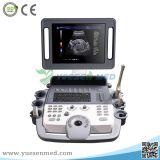 Ysb-K100 China LCD Monitor-beweglicher Laufkatze-Farben-Doppler-Scanner-Ultraschall