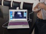 Usb-Fühler-Laptop-Tablette gründete bewegliche Ultraschall-Einheit