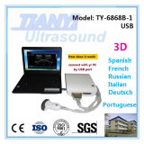Laptop PC를 위한 USB Ultrasound Scanner