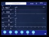 S6100 de dispositivos de la ICU precios baratos de la máquina del sistema de anestesia