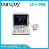 Акция! ! 12-дюймовый ЖК-дисплей портативного ультразвукового сканера (RUS-9000B) -Fanny