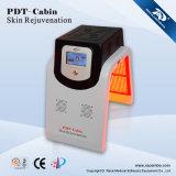 PDT recientemente la belleza de la máquina en el tratamiento de acné severo (PDT-Cabina)