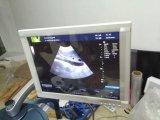 Voll-Digitaler Doppler-Ultraschall der Farben-Mslcu24