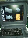 Scanner portatif d'échographie-Doppler de couleur (K6)