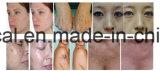 Le pigment dépose la machine pour le salon de beauté et de la clinique