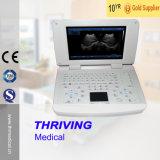 für menschlichen und doppelten Gebrauch-Ultraschall-Veterinärscanner