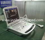 Sistema portátil de ultrasonido 4D Doppler color (YSD516)