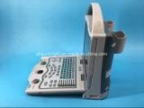 Baixa do preço melhor venda scanner de ultra-som portátil digital (SUN-800W)