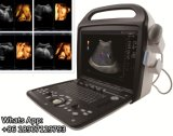Scanner portatif d'échographie-Doppler de couleur d'USG pour la grossesse