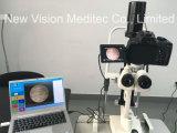 イメージ投射処理システムが付いているデジタル細げき燈顕微鏡