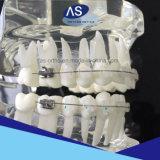 Parentesi di ceramica ortodontiche con lo SGS GMP della FDA di iso del Ce della Cina del fornitore