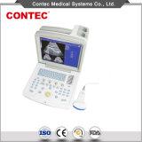 De draagbare Scanner van de Ultrasone klank van de Wijze van B met Ce- Certificaat