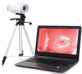 Colposcope eletrônico video amplamente utilizado de Digitas para o Gynecology