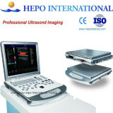 Scanner portatif Doppler d'ultrason d'écho de clinique cardio-