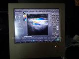 ハイテクなタッチスクリーンのデジタルカラードップラー超音波機械(MSLCU22)