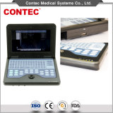 CMS600p2-B-Ultrasound Diagnostic System