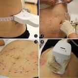 Máquina focalizada de Hifu Liposonix do ultra-som da intensidade elevada para Slimming do corpo