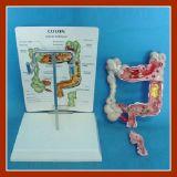 Produits médicaux modèles anatomiques de la maladie de pathologies de côlon