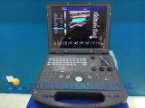 PC основал портативный ультразвук Doppler цифров цвета