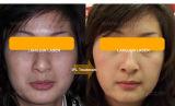 Machine permanente de réduction de cheveu de chargement initial de lampe-torche de xénon