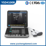 Ce/ISO anerkannter beweglicher medizinischer Ultraschall-Scanner