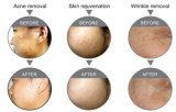 La peau de déplacement de cicatrice régénèrent le laser fractionnaire de CO2 de rf