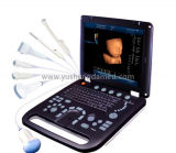 Ce Hospital Medical Equipment Laptop 4D Color Doppler Ultrasound Scanner