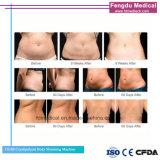 La crioterapia de eliminación de celulitis cuerpo adelgaza el equipo de belleza