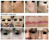 Cicatrices chirurgicales Dépose/Serrage Vaginal/fractionnée de la beauté de la machine laser CO2