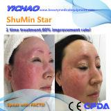 Shumin Star 2018 tecnología más reciente de tratar el eritema pápulas