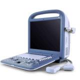 Portable médical d'ultrason des meilleurs prix de performance de FDA