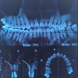 Пленка рентгеновского снимка зубоврачебной пленки голубая для зубоврачебного изображения