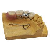 Стоматологическая съемные акриловый частичного протеза с вложениями