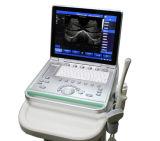 Ss-8 Laptop de Scanner van de Ultrasone klank B (gebaseerd WAPEN)