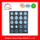 Medizinischer Röntgenstrahl-Laser-Film, Laser-Haustier-Film, röntgen blauen Film, Wasser-Beweis-Laser-medizinischen Röntgenstrahl-Film