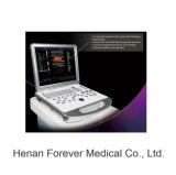 Представьте себе диагностики оборудования 3D портативный цветного доплеровского ультразвукового аппарата (YJ-U80PLUS)