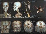Película de radiografía médica de la impresión en color con precio bajo